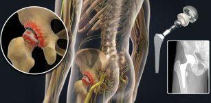 Мечникова замена суставов инфекционные поражения коленных суставов