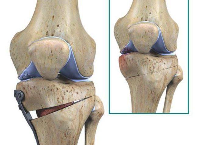 Из-за некоторых осложнений у пациента хирург может отказаться проводить операцию