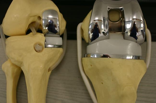 Разновидности эндопротезирования коленного сустава