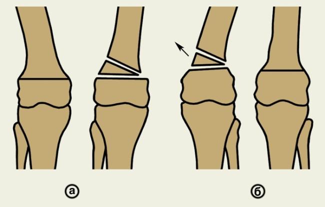 Операция по исправлению деформации бедренной кости (а – с вживлением импланта, б – с удалением поврежденного фрагмента в форме клина)