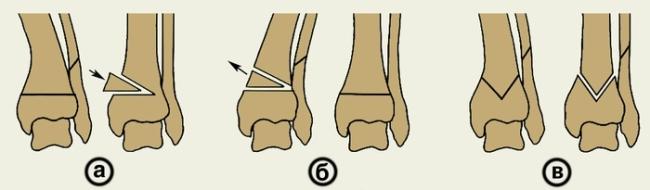 Операция по вправлению голени (а – линейная, б – с удалением клиновидной части, в – угловая)