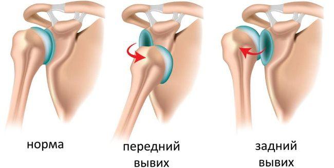 Разновидности привычного вывиха плеча