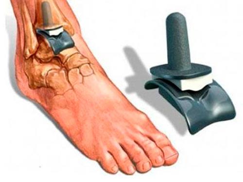 Принцип операции эндопротезирование – установка высокопрочного импланта, который представляет собой шарнир, заменяющий биологический сустав