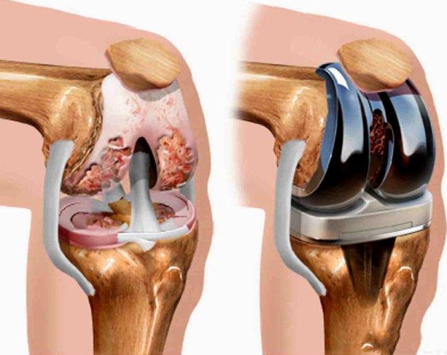 Протезирование – это частичная или полная замена пораженного сустава искусственным аналогом (имплантом)