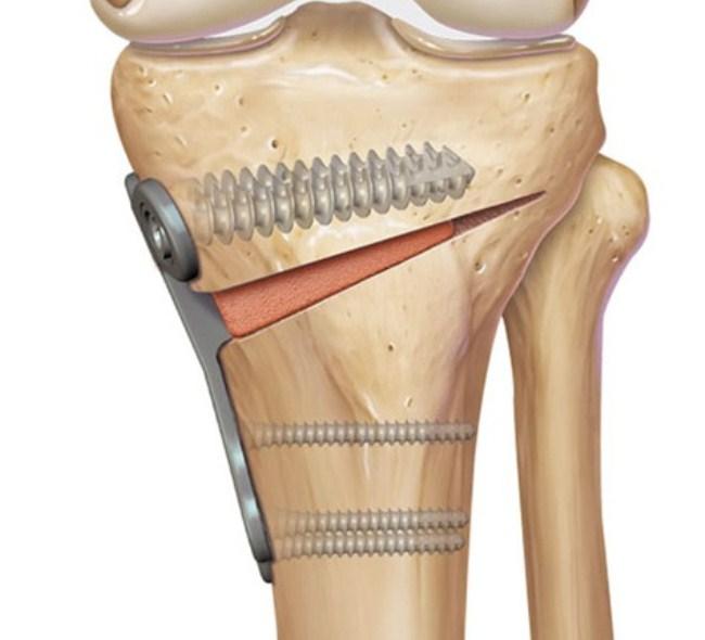 Суть остеотомии – рассечение кости с целью дальнейшей коррекции ее формы и положения с последующей фиксацией шарнирами
