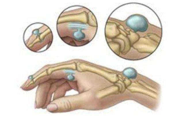 В каких местах на руке чаще всего формируется гигрома