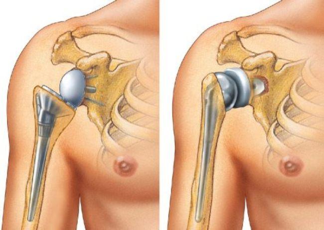 Замена плечевого сустава протезом