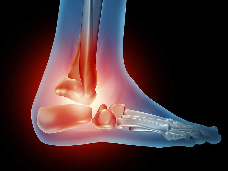 Хронические боли - показание для замены сустава