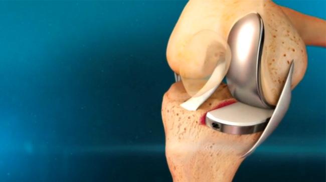 Эндопротезов коленного сустава