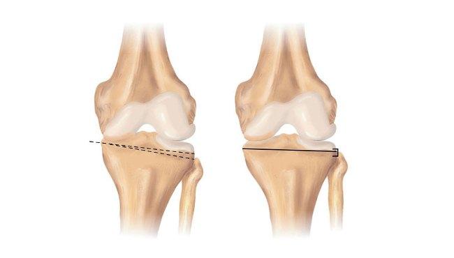 Существуют несколько видов остеотомии