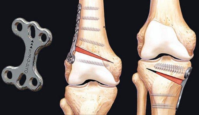 Корригирующая остеотомия.