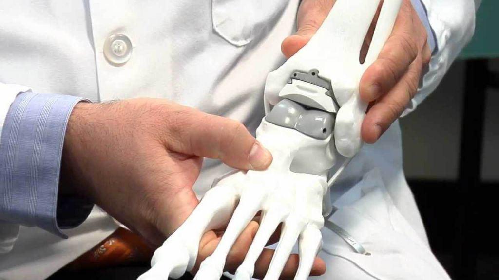 Выбор протеза - важная часть подготовки к операции