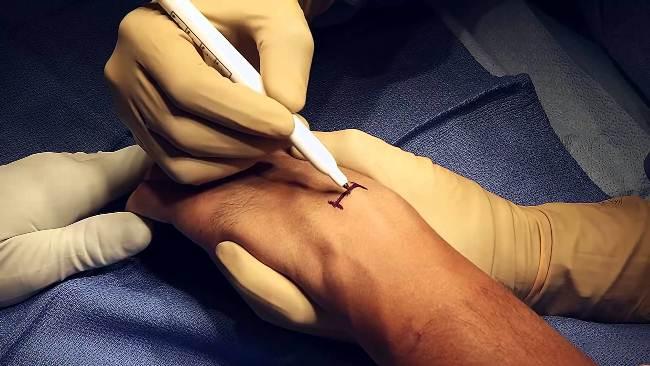 Операция по удалению гигромы на запястье